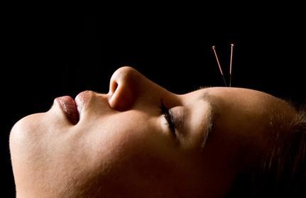 Acupuncture Migraine Testimonial