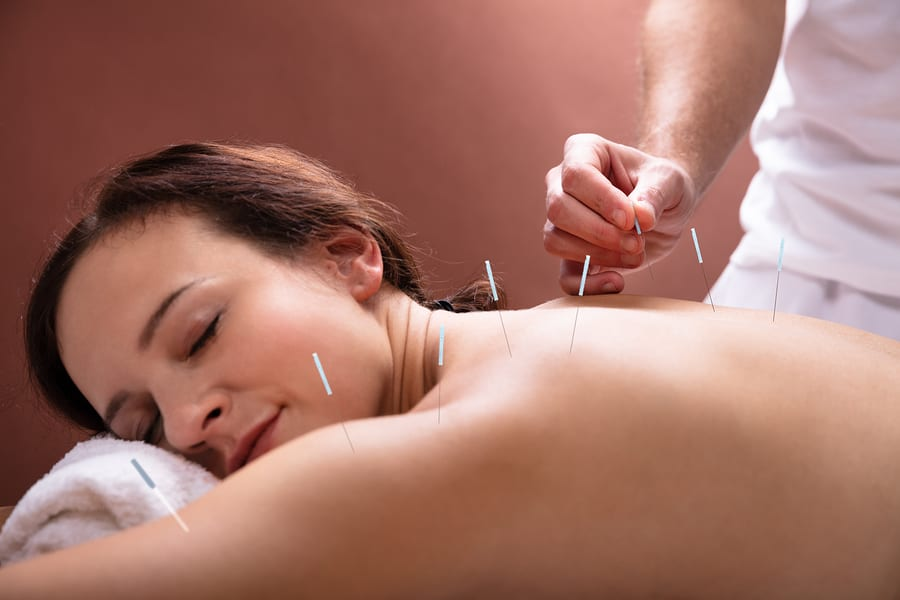 painless acupuncture treatment