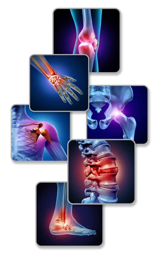 Arthritis or joint pain concept
