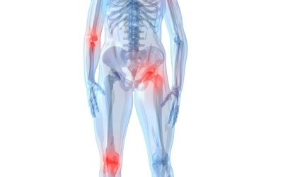 Reducing Joint Pain Without Surgery