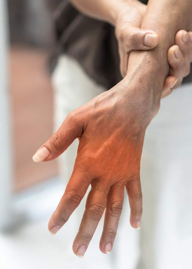 Peripheral Neuropathy Pain In Elderly Ageing Patient On Hand, Joint Pain